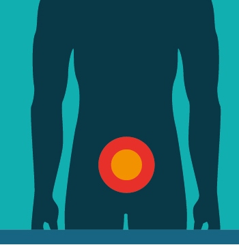 What is Male Pelvic Pain?